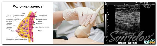 Подтяжка молочных желез (мастопексия) в клинике в Москве