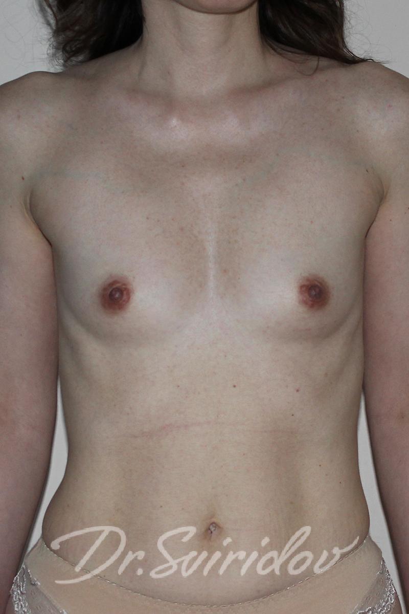 фото груди с большим соском