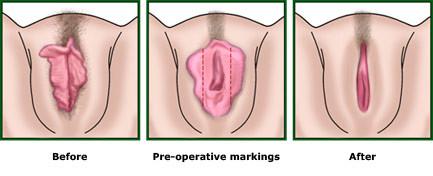 После секса щипят половые губы